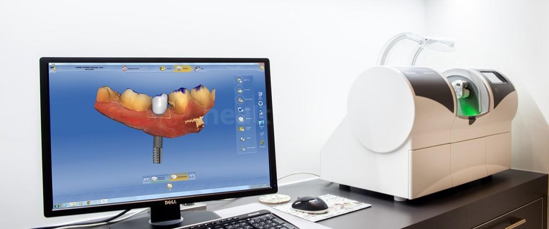 Implantologie Kliniek Istanbul 1